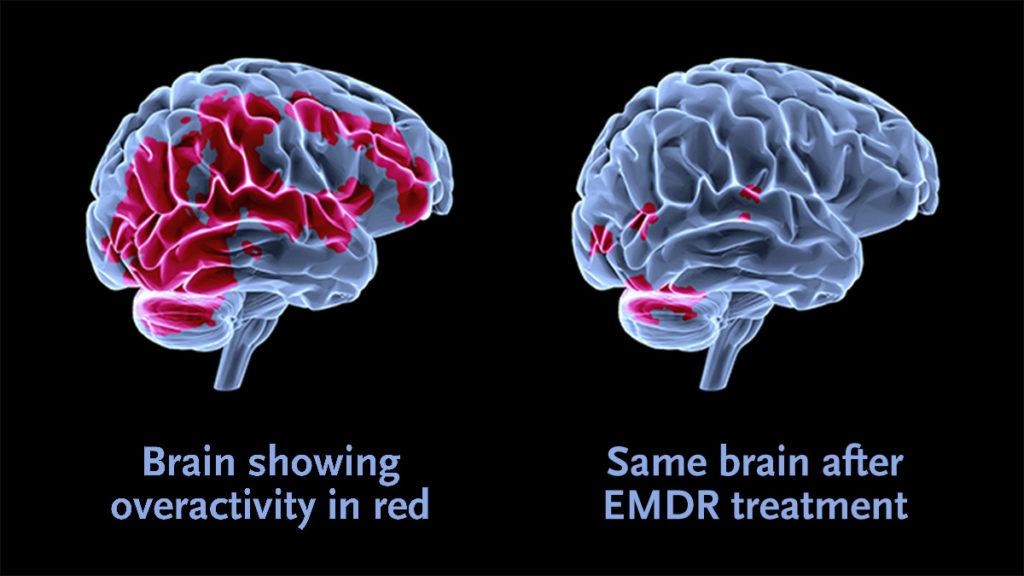 All you need to know about EMDR Therapy in Singapore